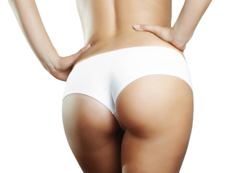 Picture of Buttock Implants